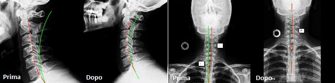 riabilitazione spinale
