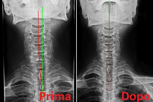 Radiografia colonna cervicale ap prima dopo cura chiropratica