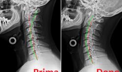 Rx rachide cervicale prima/dopo cura chiropratica