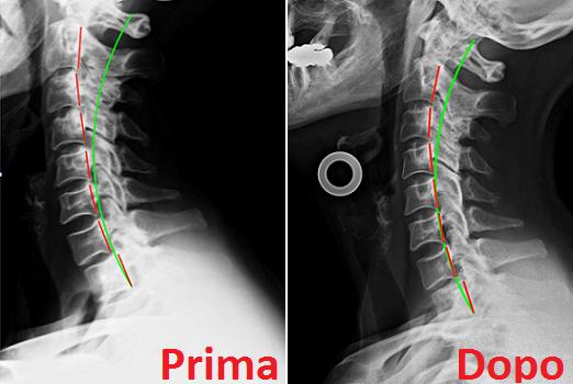 Radiografia colonna cervicale lat prima dopo cura chiropratica