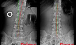 Rx rachide lombosacrale prima/dopo cura chiropratica