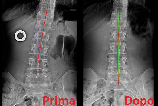 Radiografia rachide dorsale dopo cura chiropratica