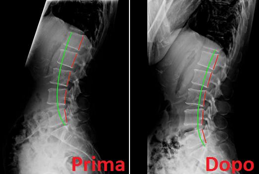 Radiografia rachide lombare lat dopo cura chiropratica