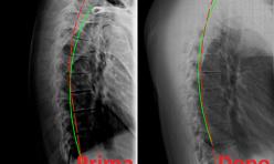 Rx rachide dorsale prima/dopo cura chiropratica 2