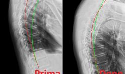 Rx rachide dorsale prima/dopo cura chiropratica 1