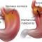 Manipolazione viscerale nella cura dell'ernia iatale